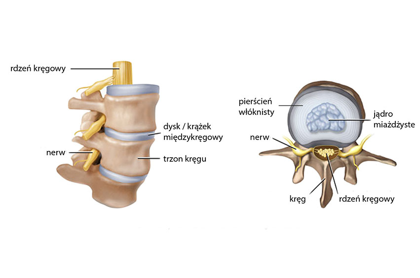 """""""Nie ma czegoś takiego jak zapalenie korzonków (korzeni nerwowych) – toniejest podłoże bólów kręgosłupa"""" – część I"""