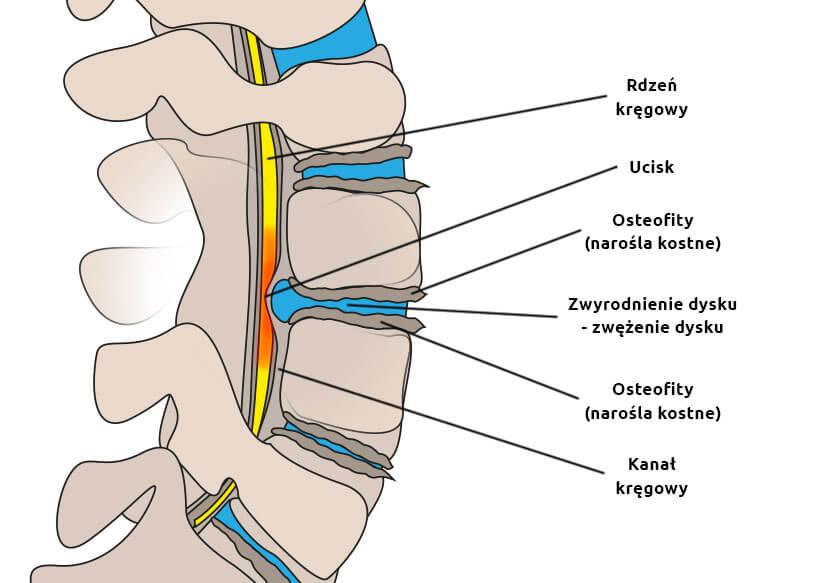 """""""Nie ma czegoś takiego jak zapalenie korzonków (korzeni nerwowych) – toniejest podłoże bólów kręgosłupa"""" – część III"""
